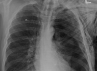 Tension pneumothorax: How capnography and ultrasound can improve care