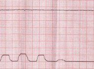 Rogue capno waves: Resuscitation team notes unusual waveform during CPR